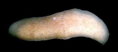 Xenoturbella